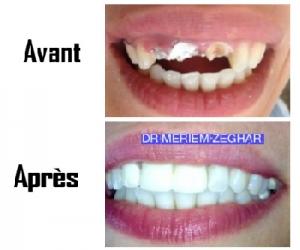 Orthodontie et couronnes